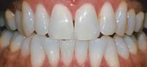 1-after-whitening