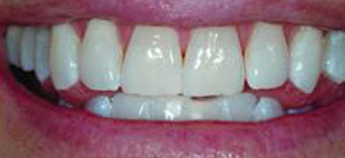 2-after-whitening